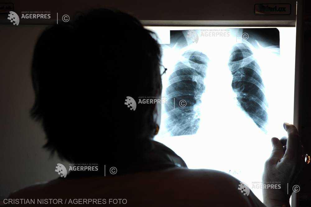 Cancerul pulmonar, mai frecvent printre nefumători decât se crede (studiu)